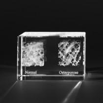 3D Knochenmodell Knochen vom Mensch mit Osteoporose, Medizinische Motive