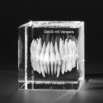 3D Modell vom menschlichen Gebiss mit Veneers, Zahnmodell für Zahnärzte, Dentalmotive in Kristallglas gelasert