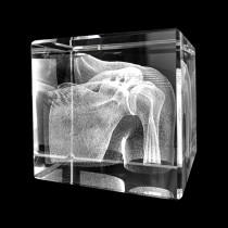 Schultergelenk als Glasmodell