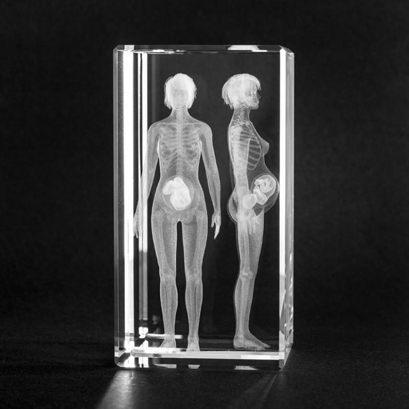 3D Modell der Anatomie: Schwangere Frau in Glas gelasert