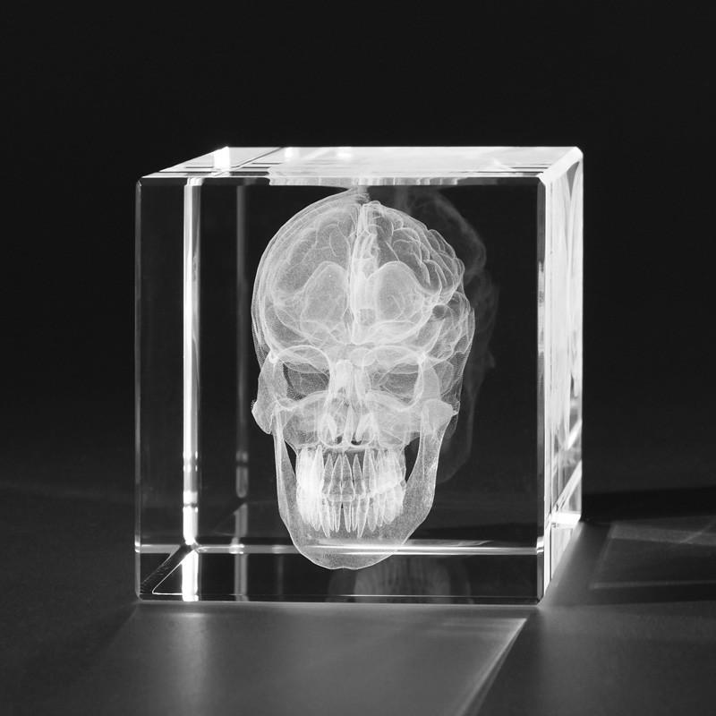 3D Anatomie – Menschlicher Schädel (Schnitt) in Kristallglas gelasert